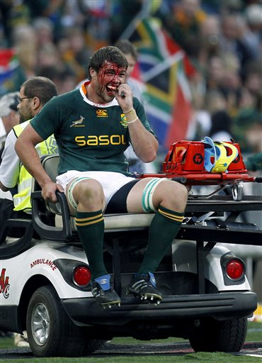 FILE - In this Aug. 21, 2010, file photo, South Africa's Flip van der Merwe is driven away by a paramedic after suffering an injury during a Tri Nations rugby match against New Zealand at FNB stadium in Johannesburg, South Africa. Though injury rates in rugby are as high or higher than those in American football, there has never been a push to bring helmets and heavy padding into the game. (AP Photo/Themba Hadebe, File)
