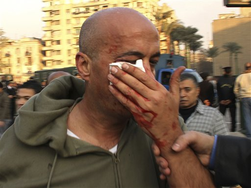 In this Jan. 25, 2011 photo, AP photographer Nasser Gamil Nasser is shown after being beaten by a policeman and injured while shooting protests in Cairo, Egypt. Nasser, 43, had his right cheekbone broken and will need surgery to repair the fractures. He said a policeman charged him while he was shooting protests late Tuesday and hurled a stone at his face. His camera was smashed. (AP Photo/Maher Malak)
